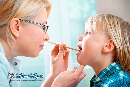 Проявление тонзиллита у детей