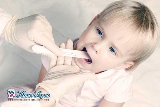 Осмотр ротоглотки у ребенка