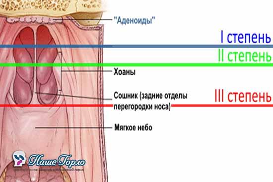 три степени гипертрофии аденоидов